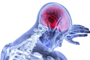 brain-swelling-image